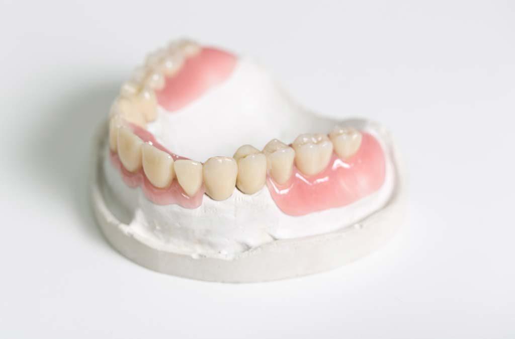 Dienstleistung-Reperaturen Zahnprothese